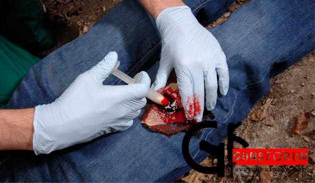Применение кровоостанавливающего аппликатора Celox