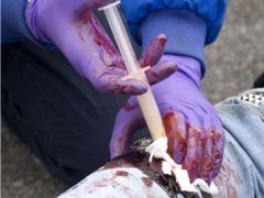 Кровоостанавливающий аппликатор Celox  в действии