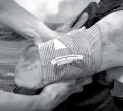 Пример наложения израильской давящей повязки FCP на рану