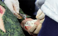 Применение кровоостанавливающих гранул Celox